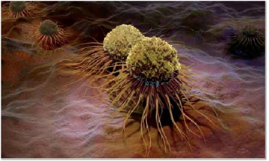 Darmspiegelung, Darmkrebs, Krebszellen, Koloskopie, Prof. Dr. Friedrich Hagenmüller, Asklepios, Altona,, integrativ, komplemantär, ganzheitlich, Medizin für Menschen, Reichelt