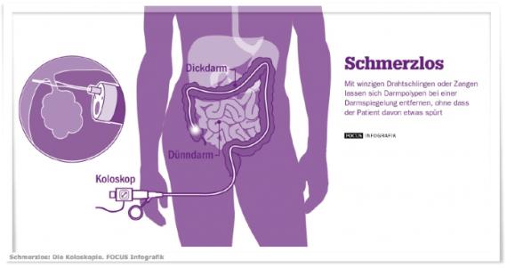 Prof. Dr. Friedrich Hagenmüller, Darmkrebs, Vorsorge, Koloskopie, Polypen, Darmspiegelung, Asklepios, Reichelt, Medizin für Menschen