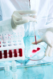 Prostata, Vergrößerung, Krebs, PSA, Vorsorge, Operation, Martini-Klinik, Hamburg, Prof. Huland, Potenz, Kontinenz, Forschung