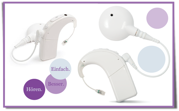 Cochlea Implantat, hören, taub, Kind, Nerven, Haarzellen, Operation, Mittelohr