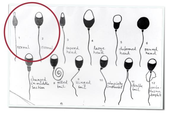 Unfruchtbarkeit, Mann, Hoden,  Samenprobe, Andrologie, Testosteron, Spermien, Konservierung, Dr. Andrea Salzbrunn, Interview, Reichelt, Medizin für Menschen