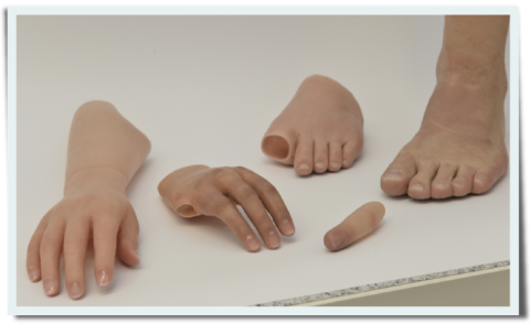 Replantation, Chirurgie, Gliedmaßen, abgetrennt, annähen, EproTec, ukb, Eisenschenk, Hand, Arm, Fuß, Bein, abgerissen, Medizin für Menschen, Reichelt
